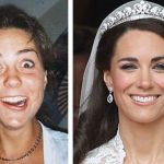 Kate Middleton before and after plastic surgery 1
