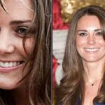 Kate Middleton before and after plastic surgery 13
