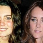 Kate Middleton before and after plastic surgery 15