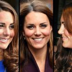 Kate Middleton before and after plastic surgery 2