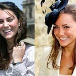 Kate Middleton before and after plastic surgery 4