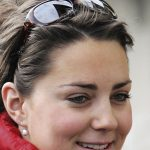 Kate Middleton before plastic surgery 9