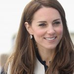 Kate Middleton plastic surgery 1
