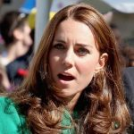 Kate Middleton plastic surgery 19