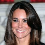 Kate Middleton plastic surgery 26