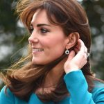 Kate Middleton plastic surgery 28
