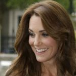 Kate Middleton plastic surgery 31