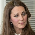 Kate Middleton plastic surgery 33