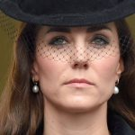 Kate Middleton plastic surgery 37