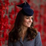 Kate Middleton plastic surgery 46