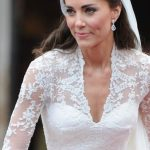 Kate Middleton plastic surgery 50