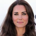 Kate Middleton plastic surgery 51