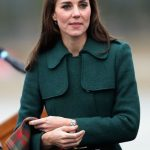 Kate Middleton plastic surgery 58