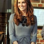 Kate Middleton plastic surgery 6