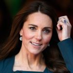 Kate Middleton plastic surgery 8