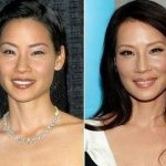 Lucy Liu before and after plastic surgery 2