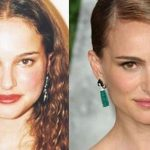 Natalie Portman before and after plastic surgery 33