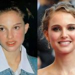 Natalie Portman before and after plastic surgery 34