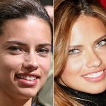 Adriana Lima before and after plastic surgery 16