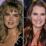 Brooke Shields before and after plastic surgery 01