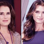 Brooke Shields before and after plastic surgery 45