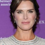 Brooke Shields plastic surgery 34