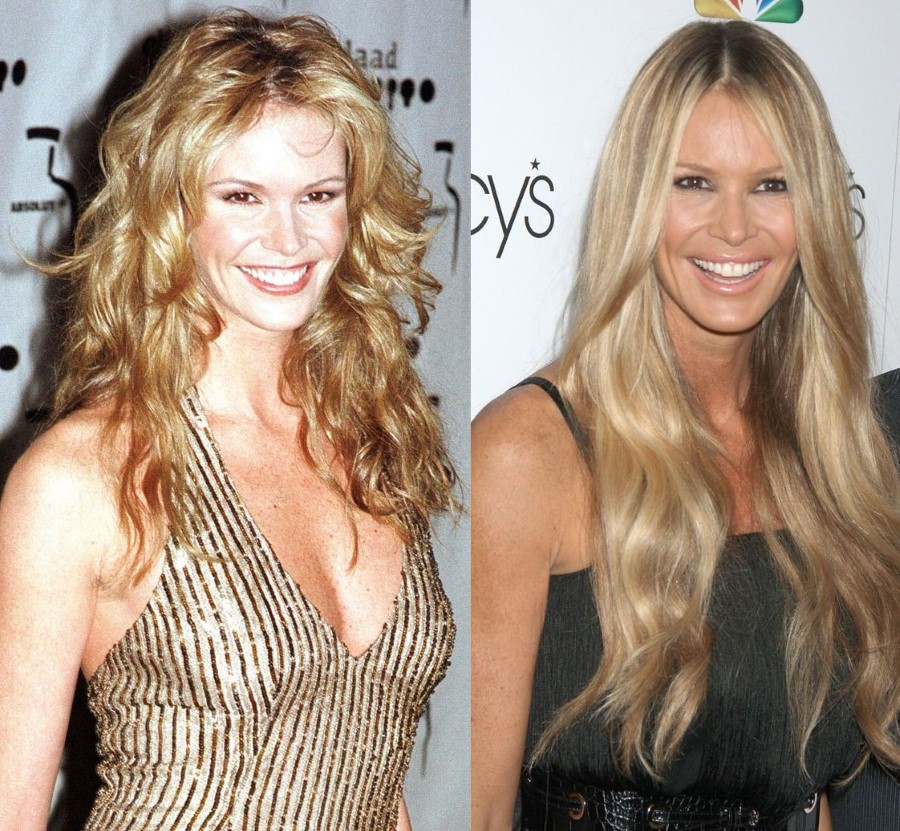 Elle Macpherson before and after plastic surgery