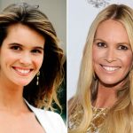 Elle Macpherson before and after plastic surgery 17