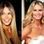 Elle Macpherson before and after plastic surgery 25