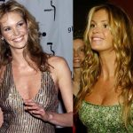 Elle Macpherson before and after plastic surgery 5