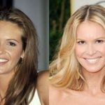 Elle Macpherson before and after plastic surgery 9