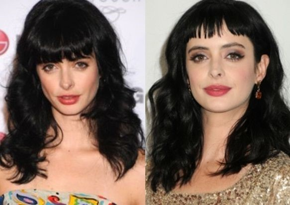 Krysten Ritter before and after plastic surgery