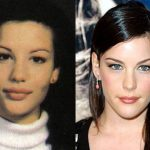 Liv Tyler before and after plastic surgery