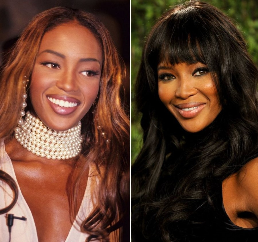 Naomi Campbell before and after plastic surgery