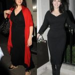 Nigella Lawson before and after plastic surgery 1