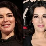 Nigella Lawson before and after plastic surgery 58