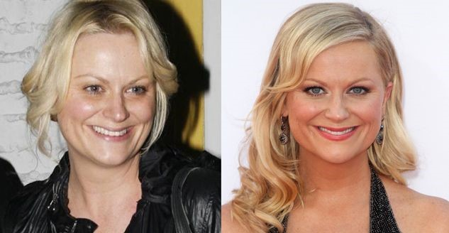 Amy Poehler befo and after plastic surgery