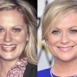 Amy Poehler before and after plastic surgery (32)