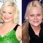 Amy Poehler before and after plastic surgery (33)