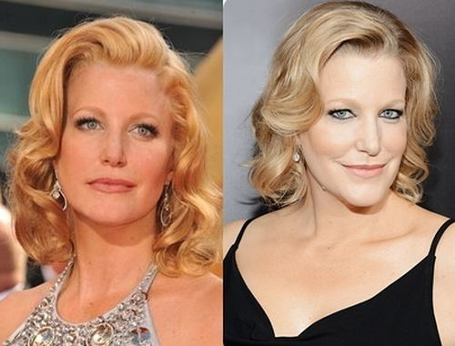 Anna Gunn before and after plastic surgery