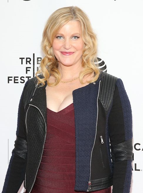 Anna Gunn plastic surgery (16) – Celebrity plastic surgery ...