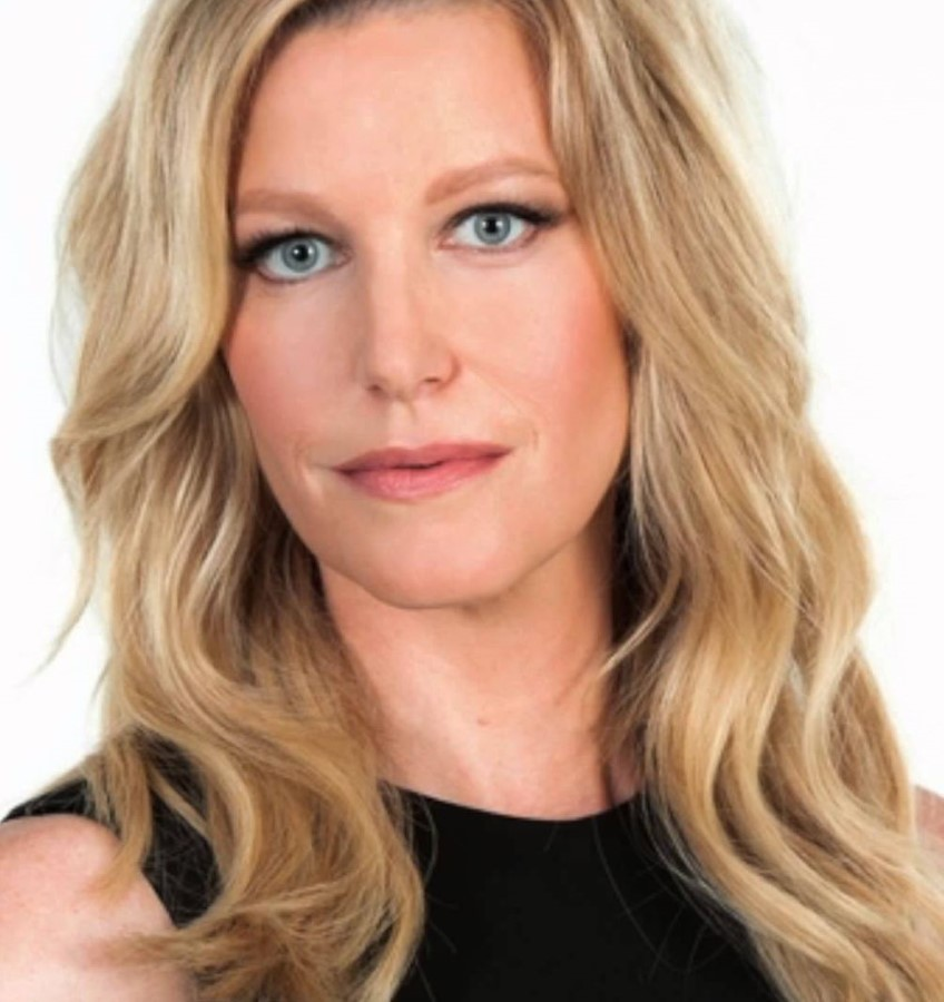 Anna Gunn plastic surgery (20) – Celebrity plastic surgery ...