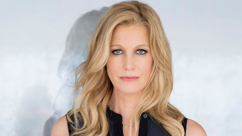 Anna Gunn Breaking Bad and plastic surgery