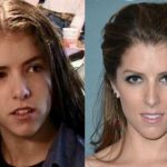 Anna Kendrick before and after plastic surgery (19)