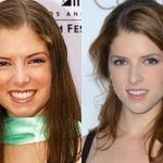Anna Kendrick before and after plastic surgery (28)
