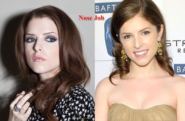 Anna Kendrick before and after plastic surgery
