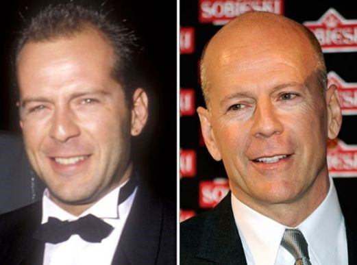 Bruce Willis before and after plastic surgery (12)