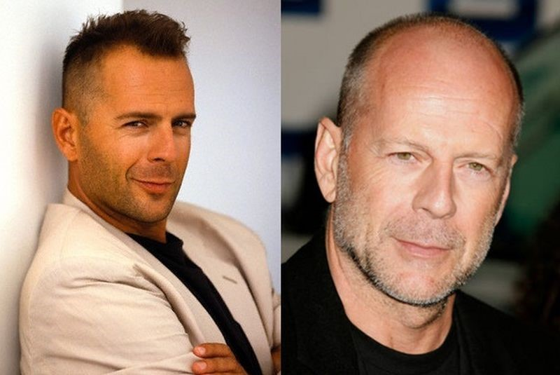 Bruce Willis before and after plastic surgery