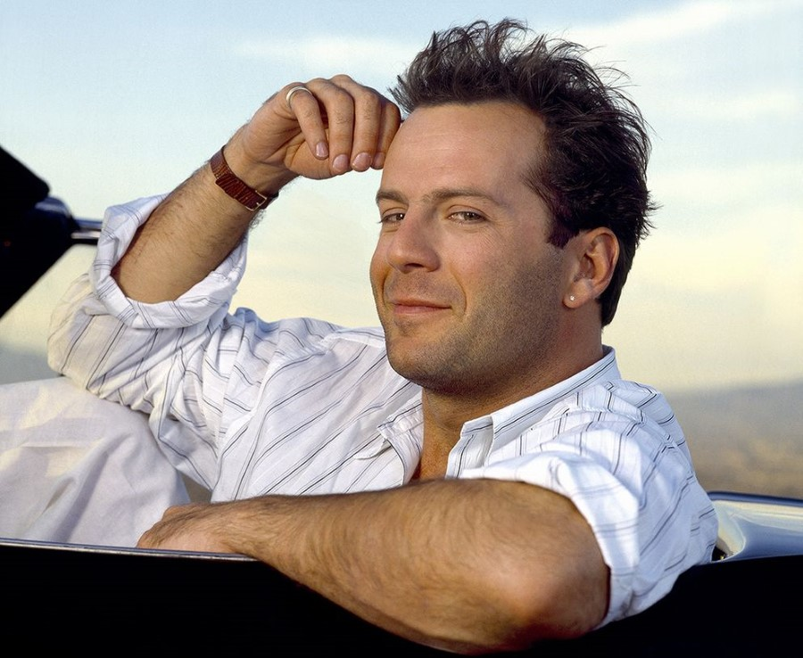 Bruce Willis plastic surgery (01)