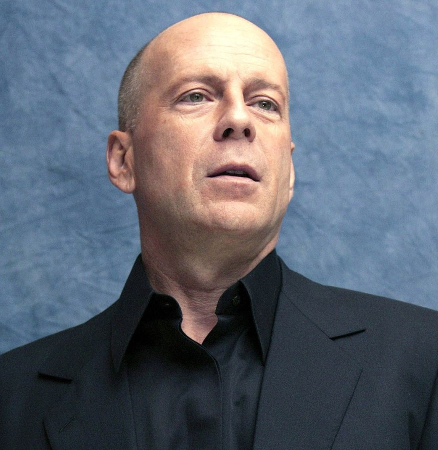 Bruce Willis plastic surgery (11)